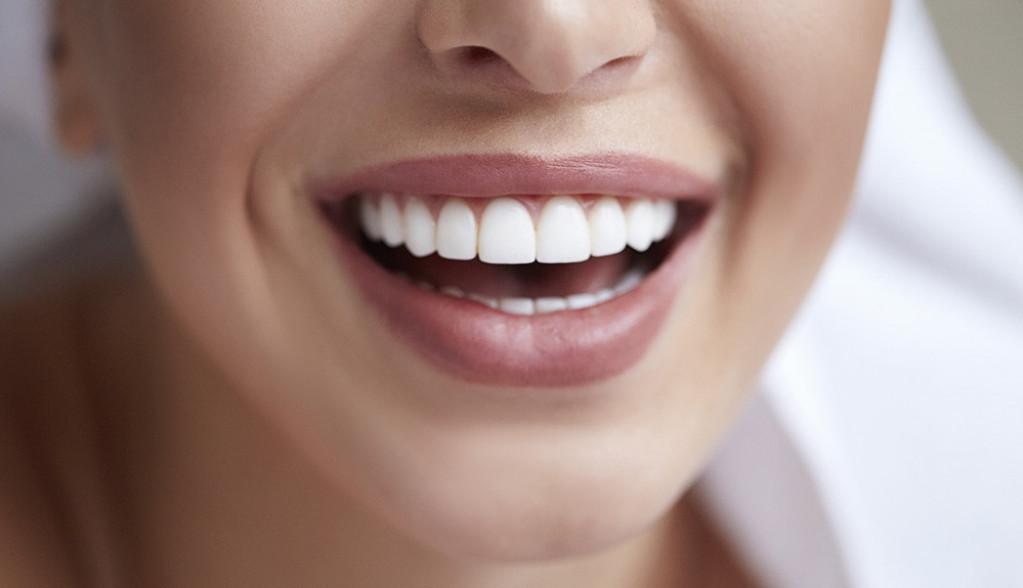 Kako do holivudskog osmeha: Top 3 saveta za lepe i zdrave zube